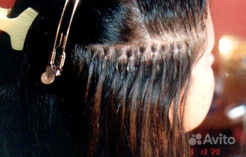 Выпадение волос из за гормонального расстройства